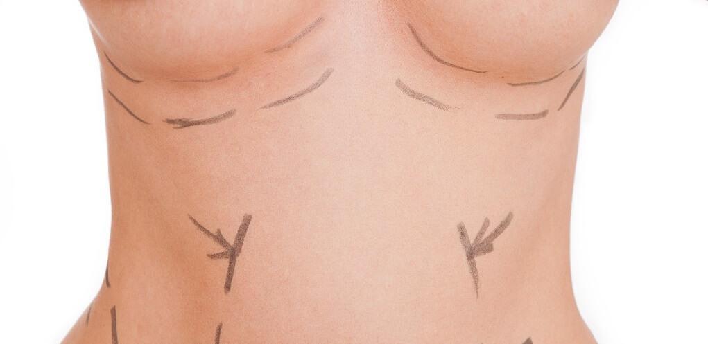 Jakie warto sprawdzić metody powiększania biustu bez operacji?