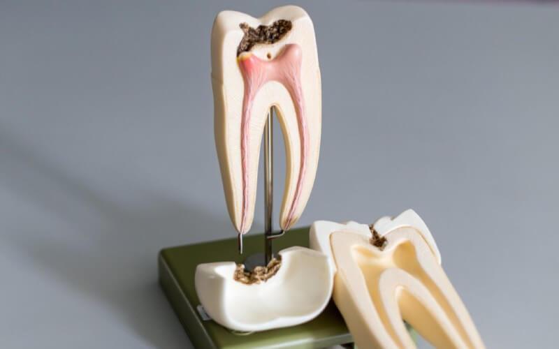 Skuteczne leczenie kanałowe zębów.