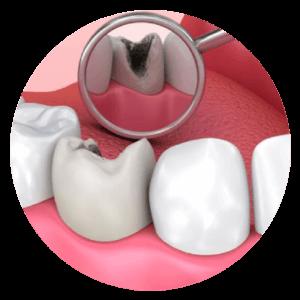 Leczenie kanałowe sposobem na uratowanie chorych zębów.